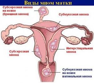 Згустки крові при місячних причини