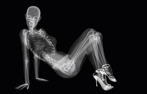 Деякі види рентгенівського обстеження при менструації будуть неінформативними