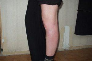 Сверблять ноги нижче колін