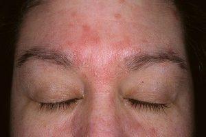 Себорейний дерматит - лікування народними засобами