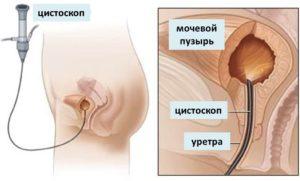 Інстиляція уретри і сечового міхура